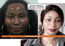 Skin Bleaching Addiction