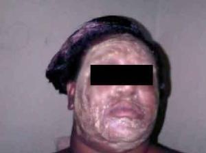 Woman wearing bleaching cream